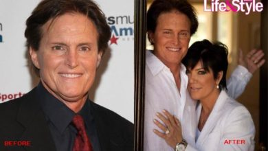 Photo of Bruce Jenner Before & After Plastic Surgery: The Same