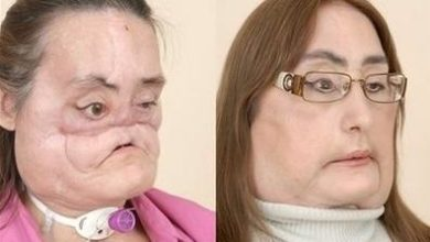 Photo of Connie Culp, the First Face Transplant Patient Revealed!