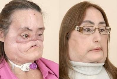 Connie Culp, the First Face Transplant Patient Revealed!